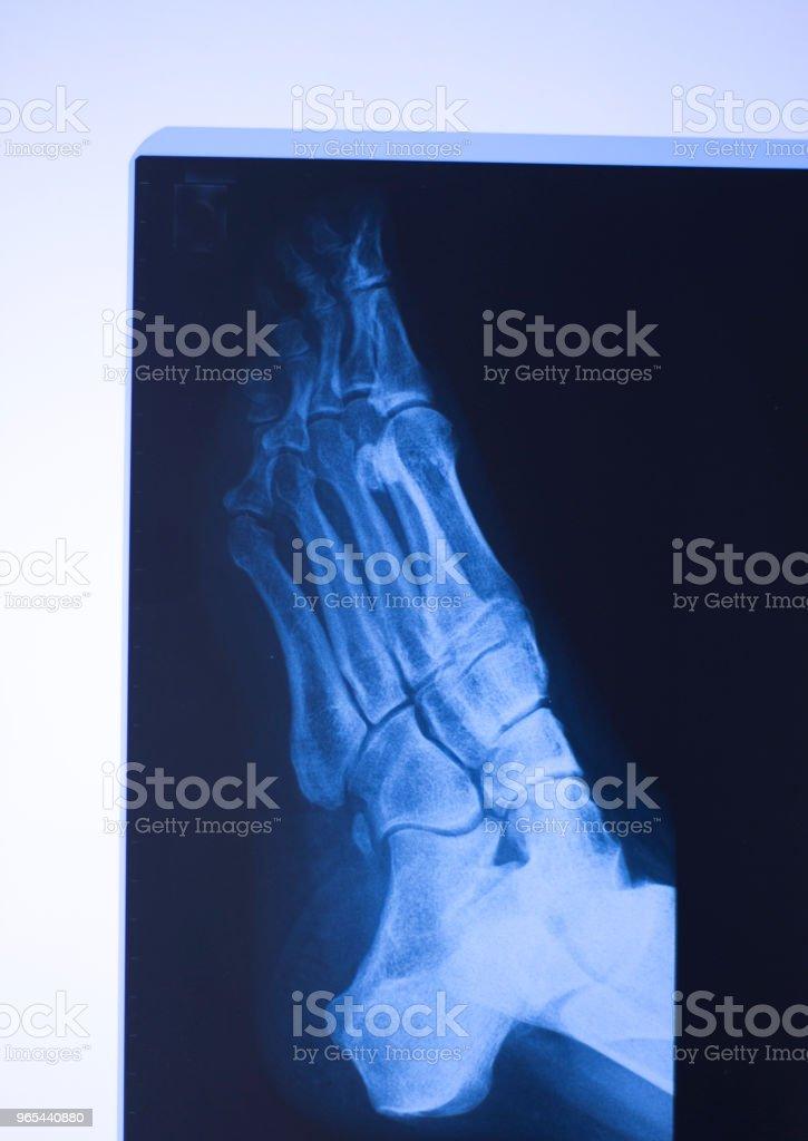 Traumatologie de l'hôpital médical aux rayons x pieds scan. - Photo de Adulte libre de droits