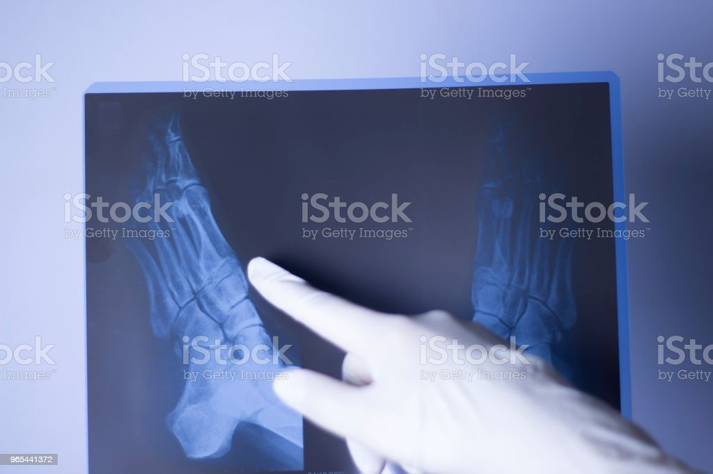 Medical hospital x-ray feet traumatology scan. royalty-free stock photo