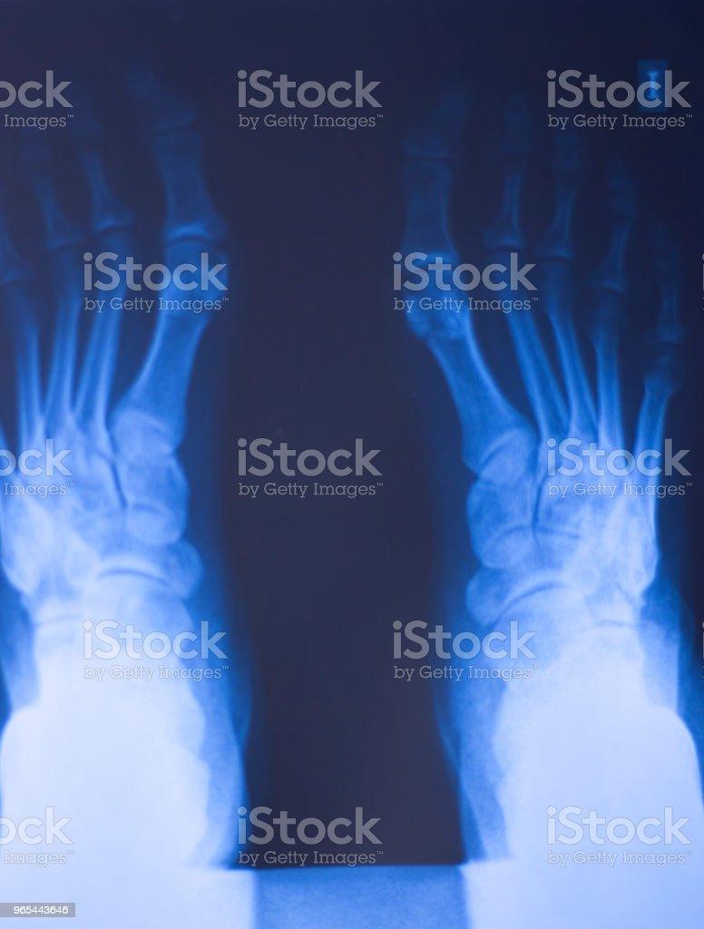 Medical hospital x-ray feet traumatology scan. zbiór zdjęć royalty-free
