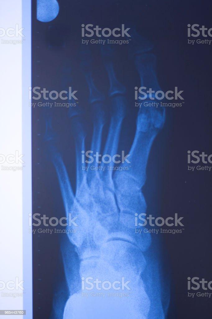Medical hospital x-ray feet traumatology scan.