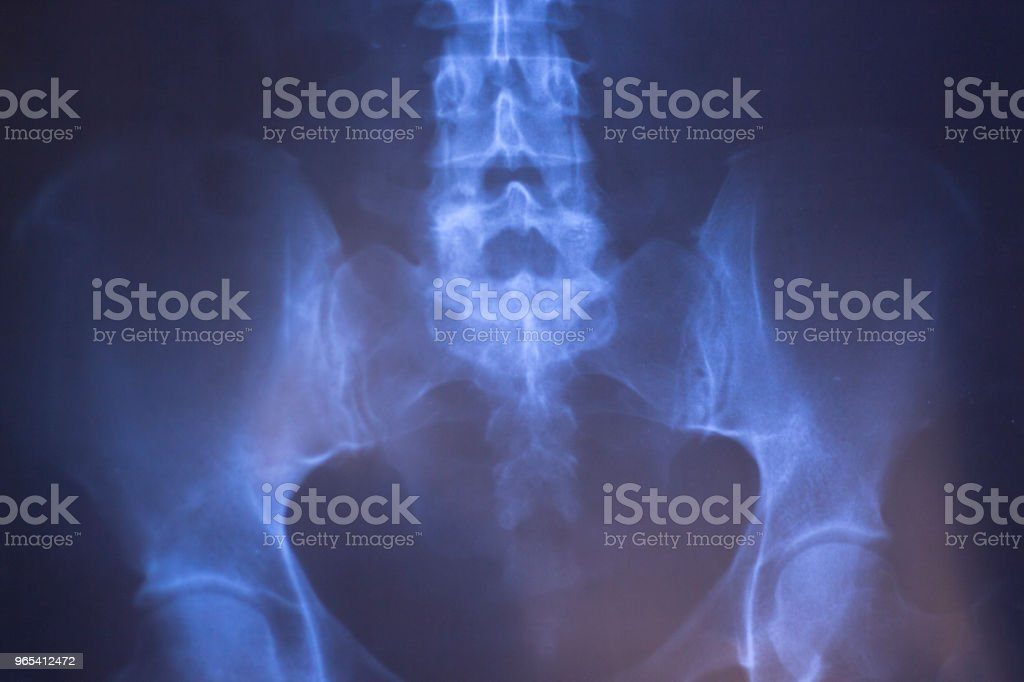Medical hospital x-ray lowe back pain spine and hips traumatology scan. royalty-free stock photo