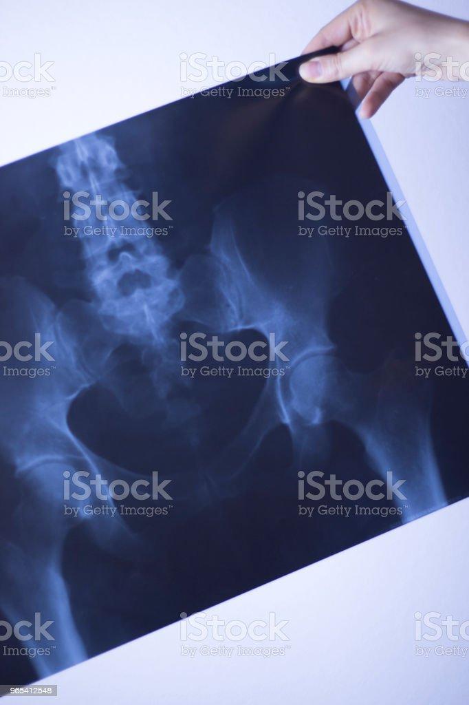 Hôpital des rayons x lowe douleurs lombaires colonne vertébrale et des hanches traumatologie scan. - Photo de Adulte libre de droits