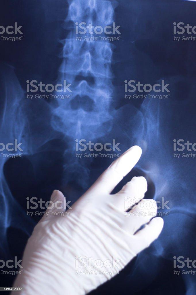醫療醫院 x 光背痛脊柱和髖部創傷掃描。 - 免版稅X光機圖庫照片