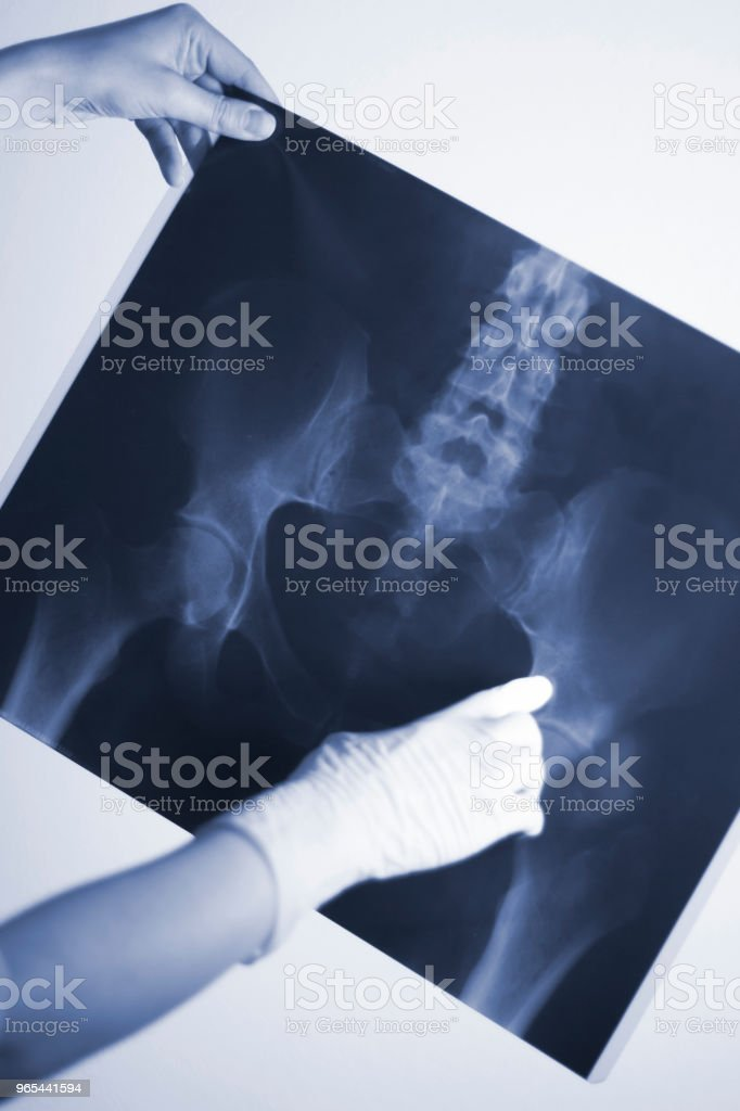Medical hospital x-ray lowe back pain spine and hips traumatology scan. zbiór zdjęć royalty-free