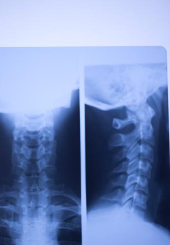 의료 병원 엑스레이 로우 허리 통증 척추와 목 학 스캔 0명에 대한 스톡 사진 및 기타 이미지