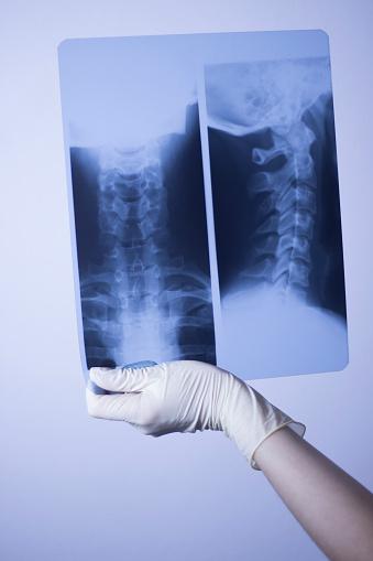 의료 병원 엑스레이 로우 허리 통증 척추와 목 학 스캔 X-레이에 대한 스톡 사진 및 기타 이미지