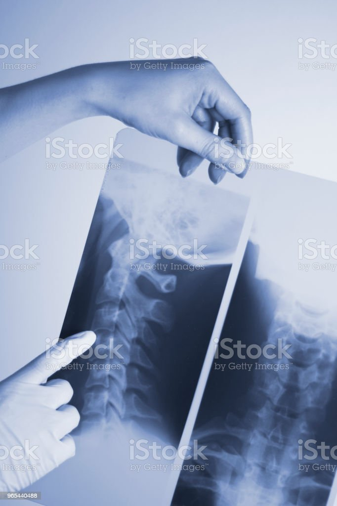 Medical hospital x-ray lowe back pain spine and neck traumatology scan. royalty-free stock photo