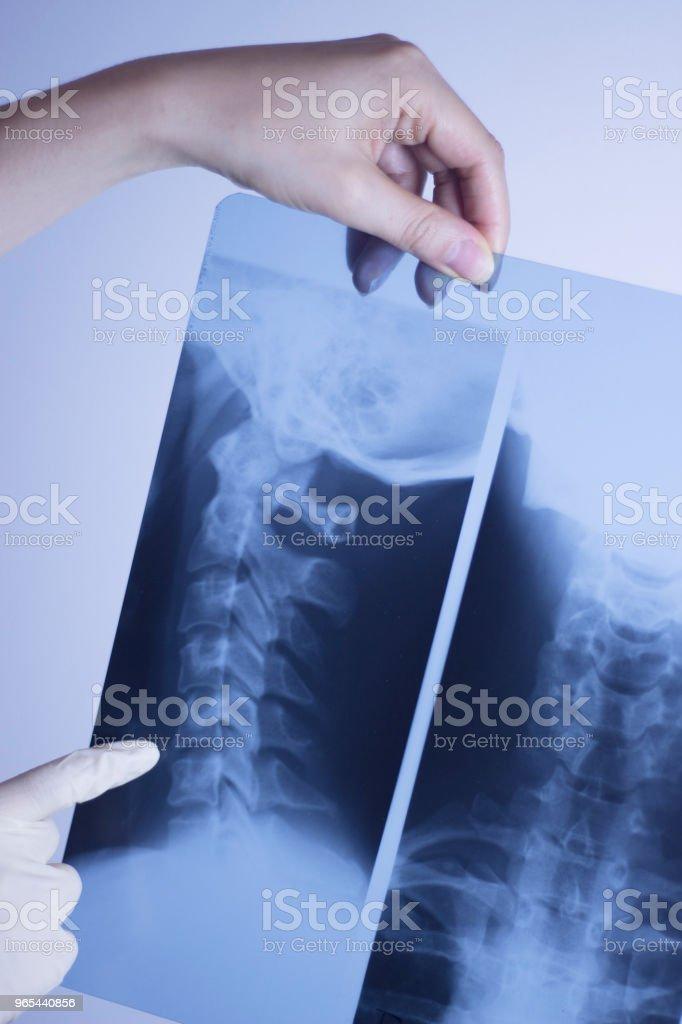 醫療醫院 x 線背痛脊柱和頸部創傷掃描。 - 免版稅X光片圖庫照片