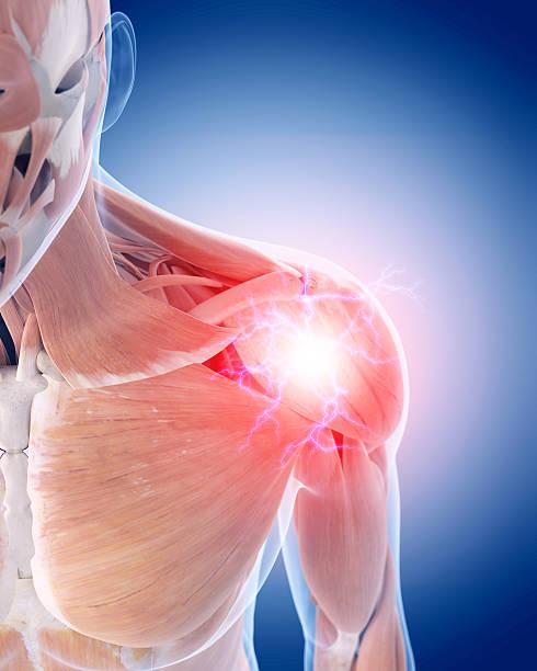 dolor de hombro - músculo humano fotografías e imágenes de stock