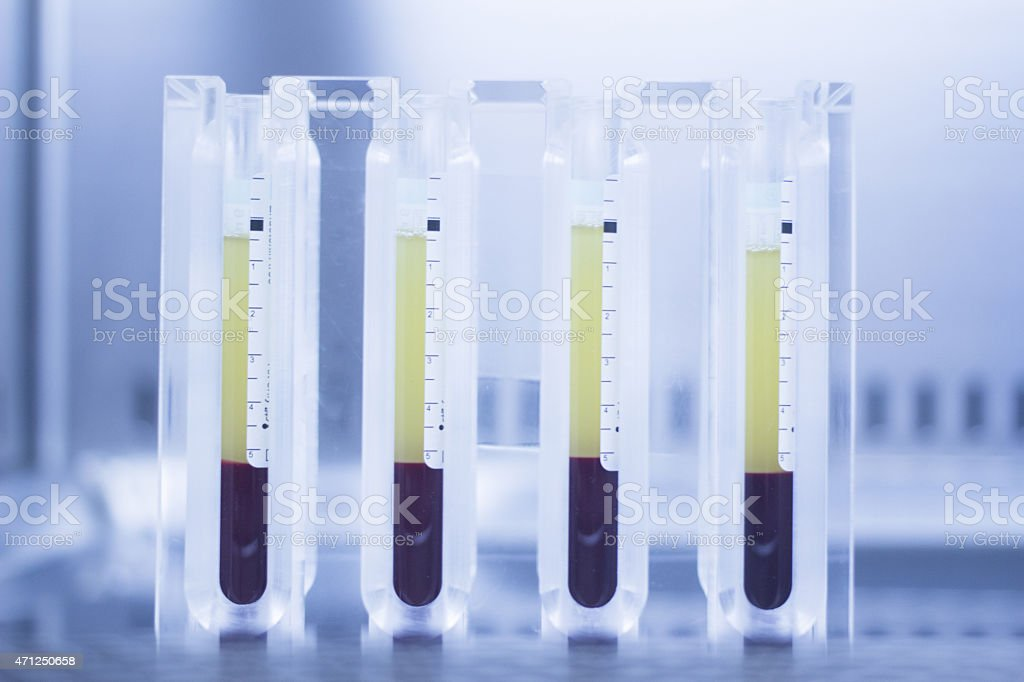 Medical laboratory test tubes PRP platelet rich plasma stock photo
