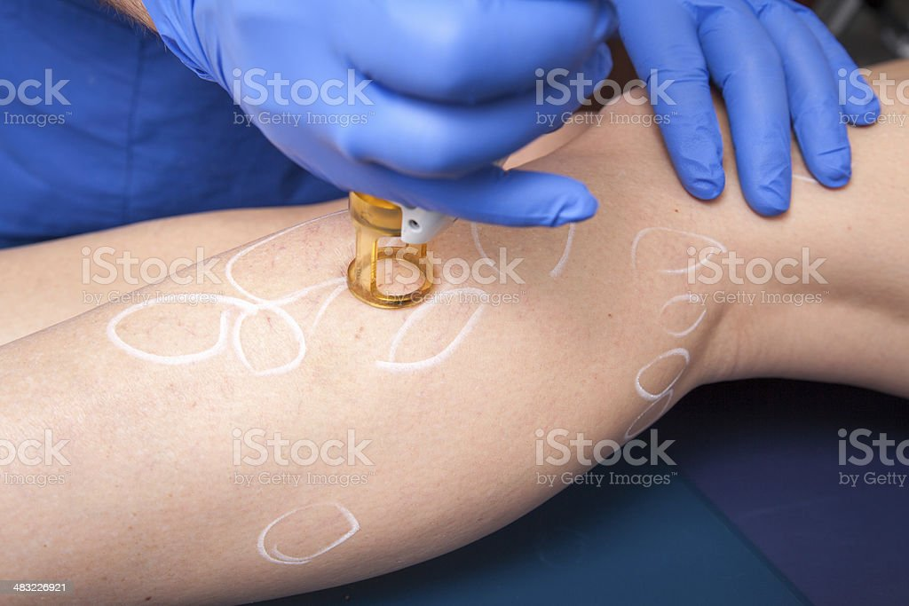 medical laser, vein, treatment stock photo