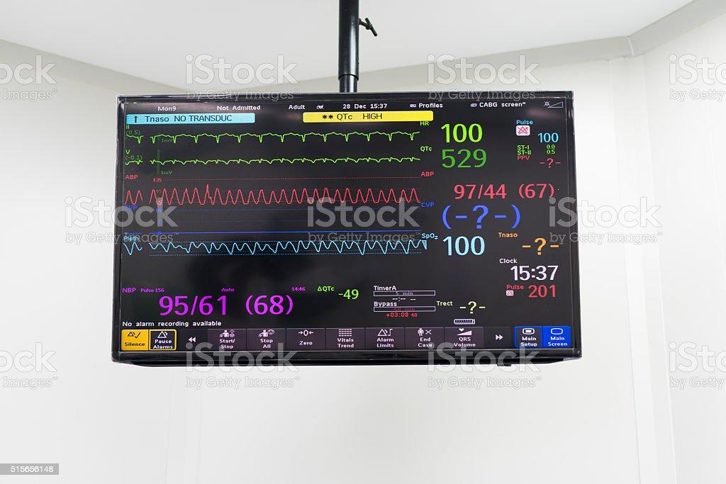 medical monitor stock photo