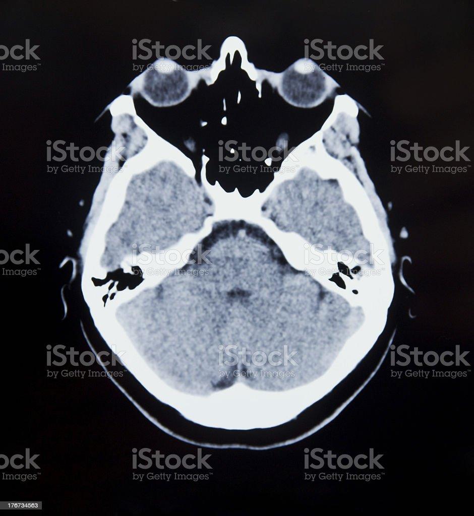 Medizinische MRI Bild mit Gehirn und Schädel – Foto
