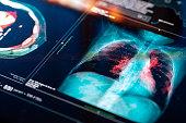 istock Medical MRI  Scan 1299730658