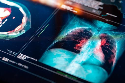 Medical MRI  Scan