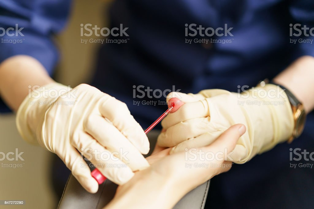 medical nurse with latex gloves is taking patient's blood for analysis stock photo