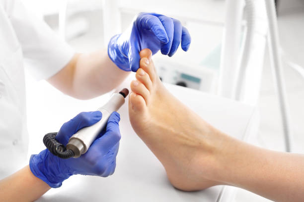 medical pedicure. podologist develops feet with a milling machine. - podiatry stock pictures, royalty-free photos & images