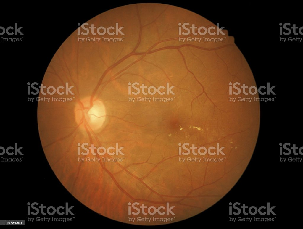 Medical photo of retinal and optic nerve stock photo