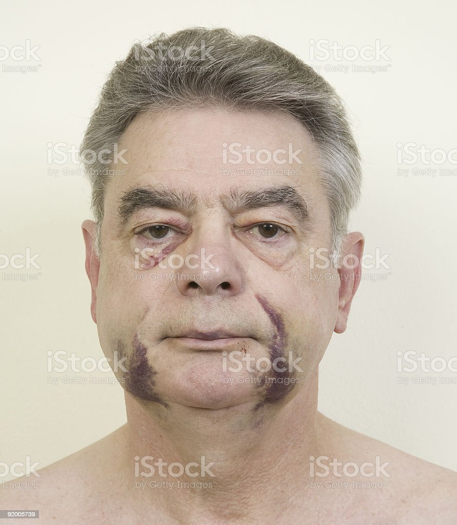 Medical Photo royalty-free stock photo