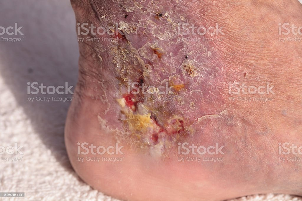 Medical picture: Infection cellulitis on the skin stock photo