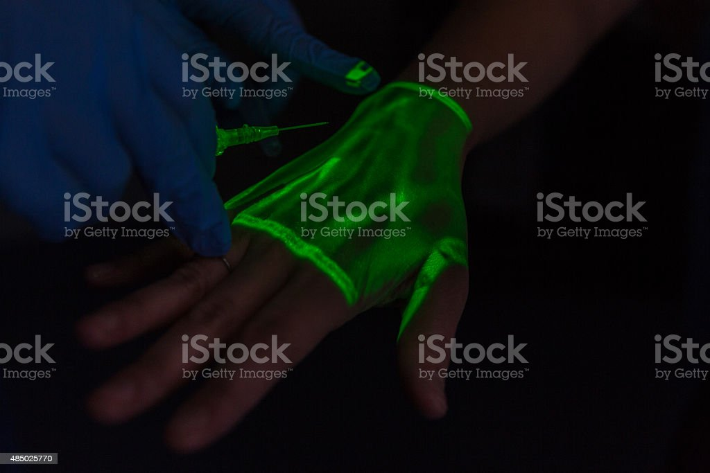 Medical professional with needle using Infared Vein Finder machine stock photo