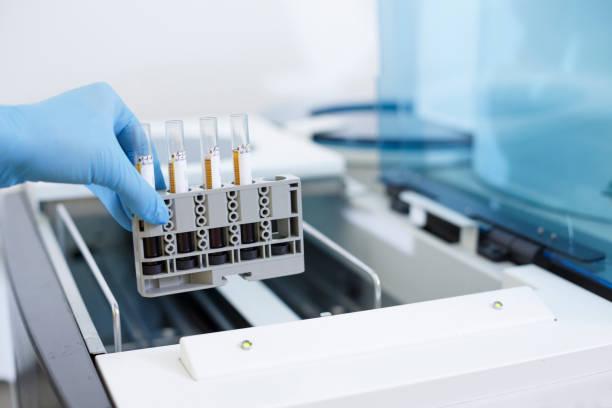 Medizinische Forschung im Labor. Wissenschaftler im Labor arbeiten mit medizinischen Proben mit modernen Geräten. Hand hautnah. Medizinische Geräte medizinische Laborgeräte für analysiert. Blut für AIDS und andere Krankheiten getestet. Definition von  – Foto