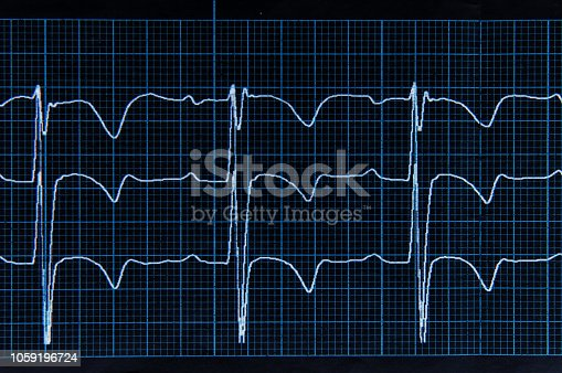istock Medical research. ECG. The heartbeat lines on the monitor screen are blue. 1059196724