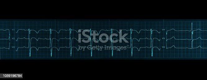 istock Medical research. Electrocardiogram. Horizontal fragment og ECG. Blue tone image. 1059196784