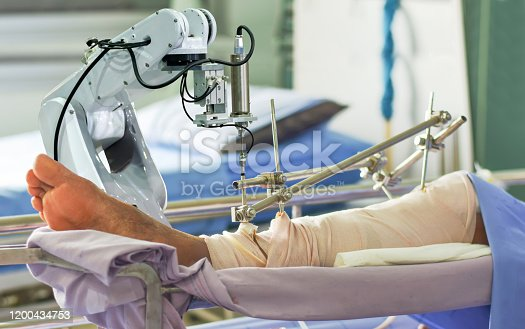 1008005294 istock photo Medical robot arm the technology artificial intelligence patient treatment 1200434753