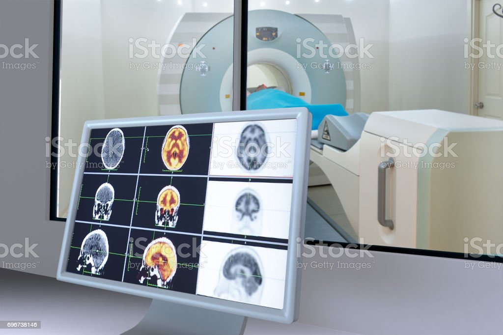 Medical scan monitor stock photo