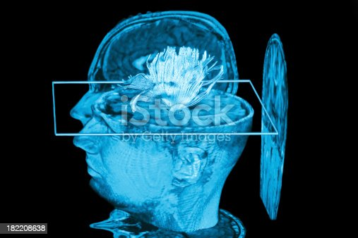 183306794istockphoto Medical Scan 182208638