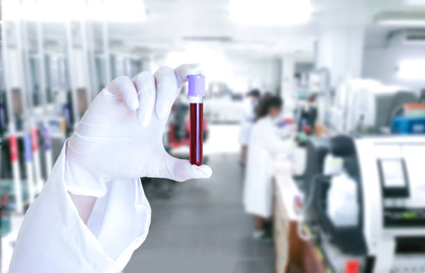 Medical scientists do a blood virus test check tube in the lab stock photo