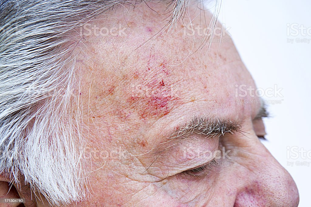 Medical Scrape On Senior Mans Head Stock Photo - Download