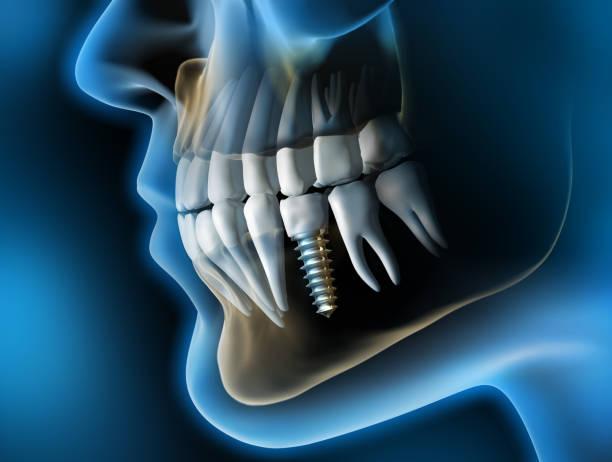 medizinische visualisierung - zahnimplantat im kiefer - 3d rendering - zahnimplantat stock-fotos und bilder