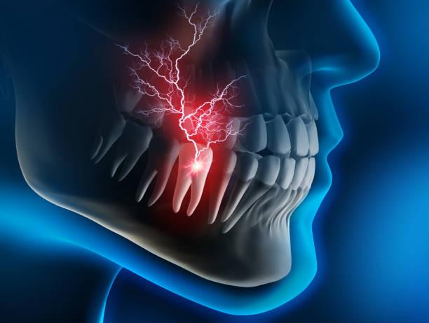 medische visualisatie-kiespijn - tandpijn stockfoto's en -beelden