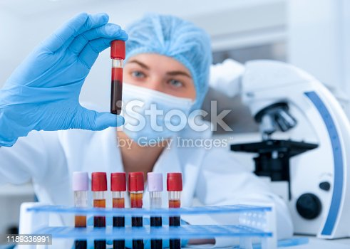 Medical worker making blood test for detection of antibodies and infections in modern laboratory, blurred background