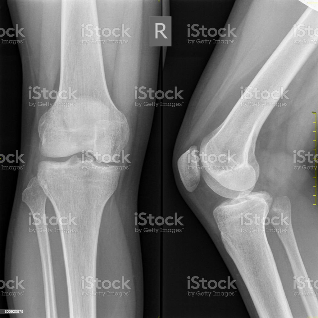Medical X-Ray Normal Knee Bone, High Resolution Image stock photo
