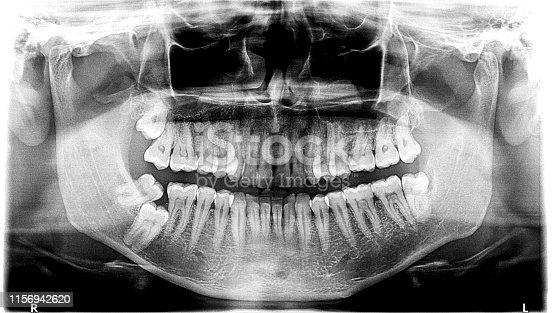 medical xray of teeths