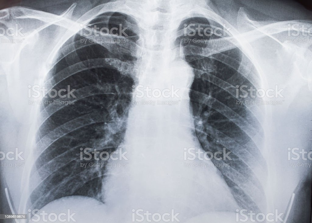 Medical X-ray photo, patient's organ,chest stock photo
