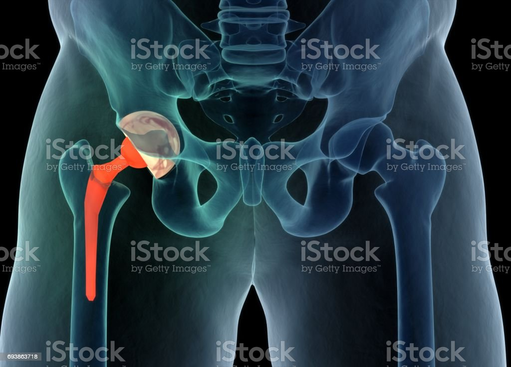 Medically accurate illustration of the hip replacement. 3d illustration. stock photo