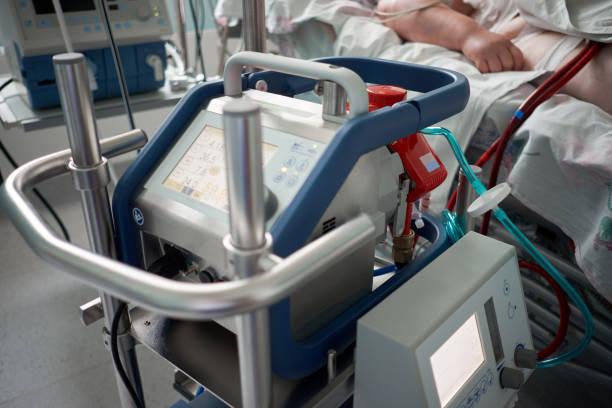 geneeskunde. extracorporeale membraanoxygenatie. werkende ecmo machine in intensive care afdeling. close-up oxygenator van ecmo. ernstig zieke patiënt op de achtergrond. - membraan stockfoto's en -beelden