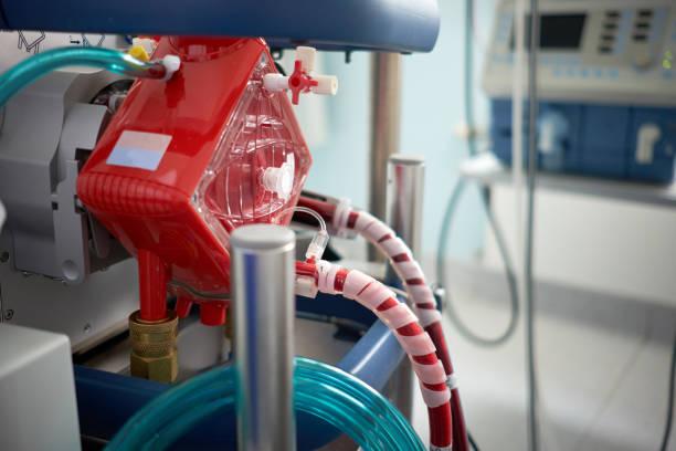 geneeskunde. extracorporeale membraanoxygenatie. werkende ecmo machine in intensive care afdeling. close-up oxygenator van ecmo. - membraan stockfoto's en -beelden