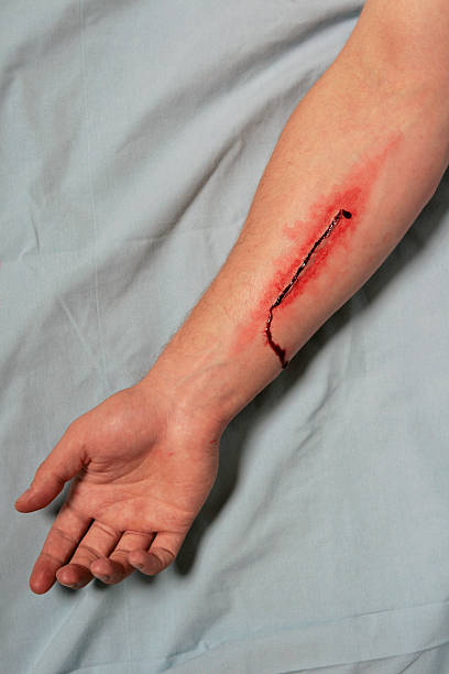 Medium Depth Incision to Forearm stock photo
