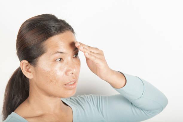 Melasma freckles and  dark spots stock photo