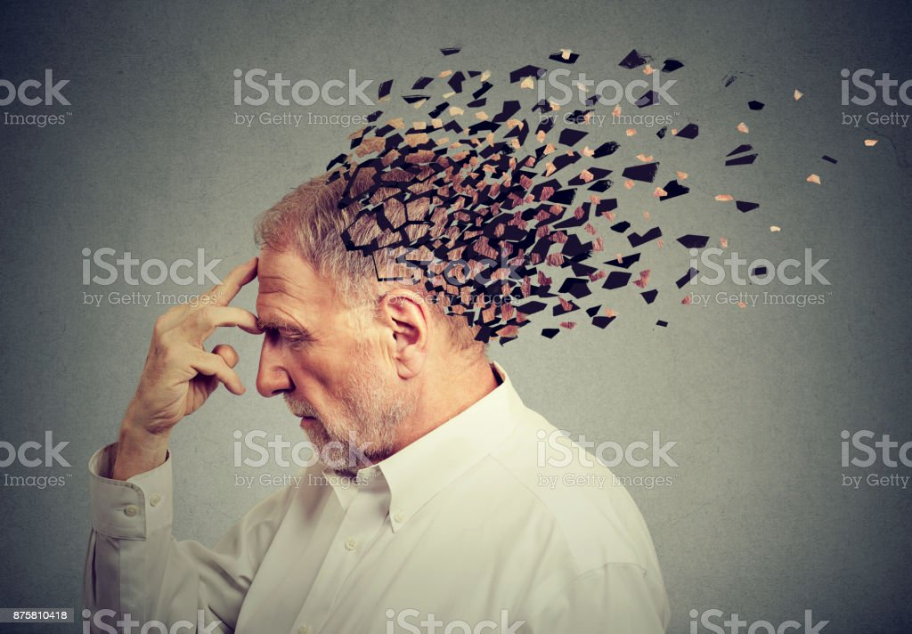 Memory loss due to dementia. Senior man losing parts of head  as symbol of decreased mind function. - foto stock