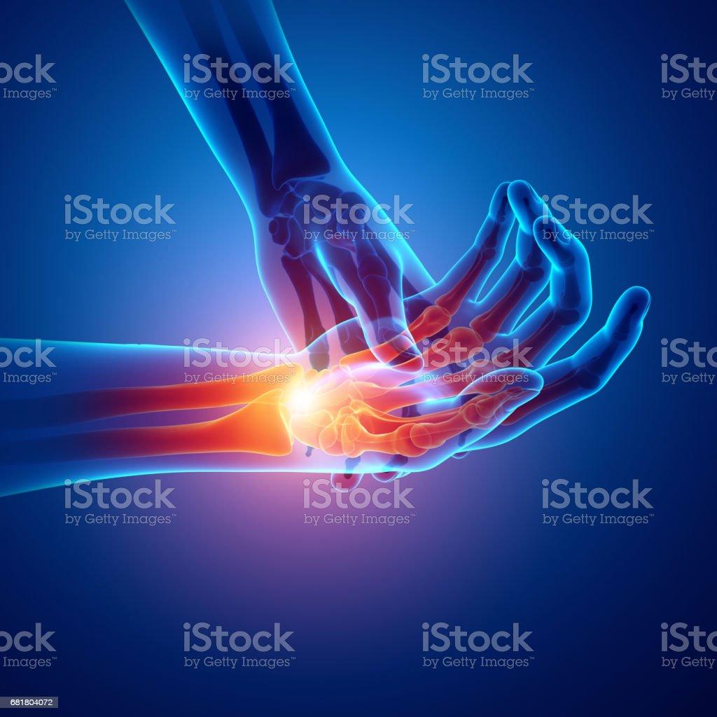 Men Feeling the Wrist Pain stock photo