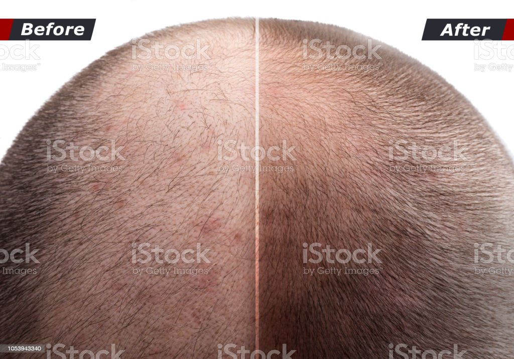 Men hair after using cosmetic powder, cream, spray to thicken hair стоковое фото