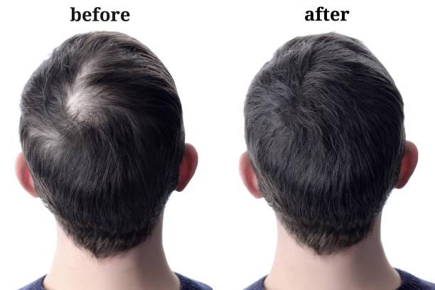 cabelo dos homens após ter usado o pó cosmético para o espessamento do cabelo. antes e depois - antecipação - fotografias e filmes do acervo