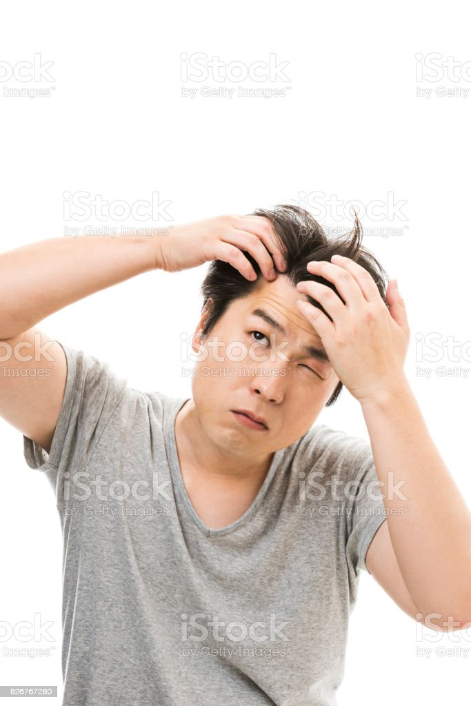 Men who are concerned about hair loss stock photo