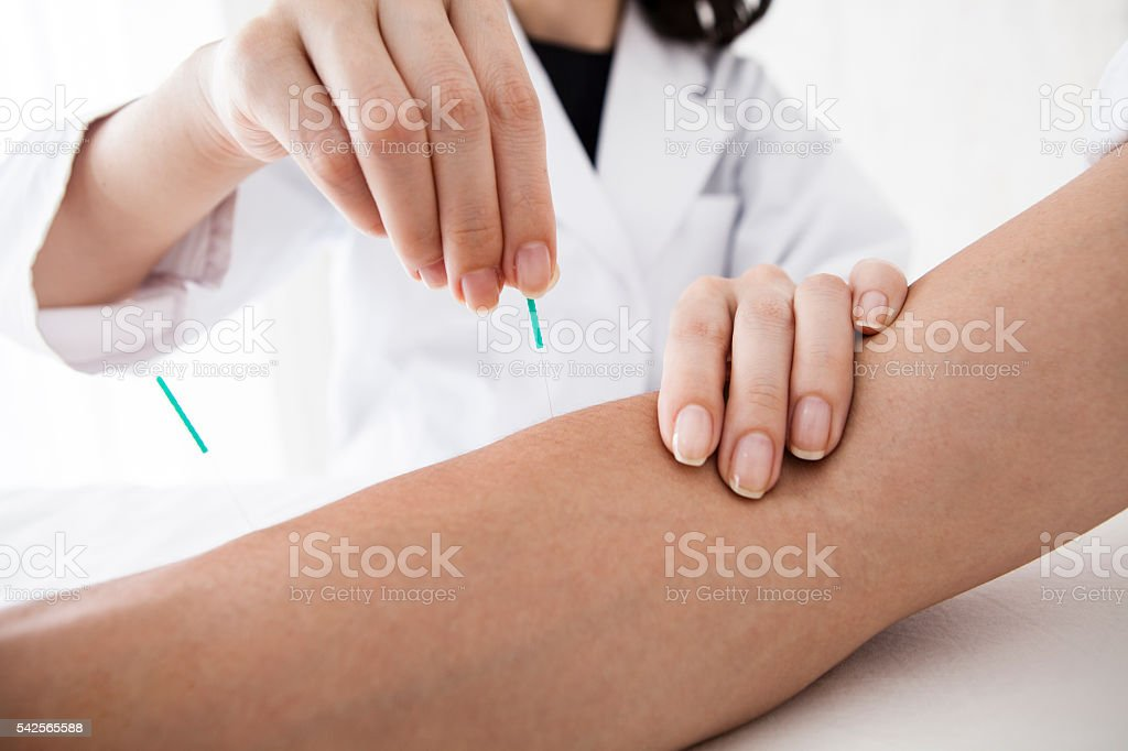 Men who have received acupuncture treatment in the arm for health
